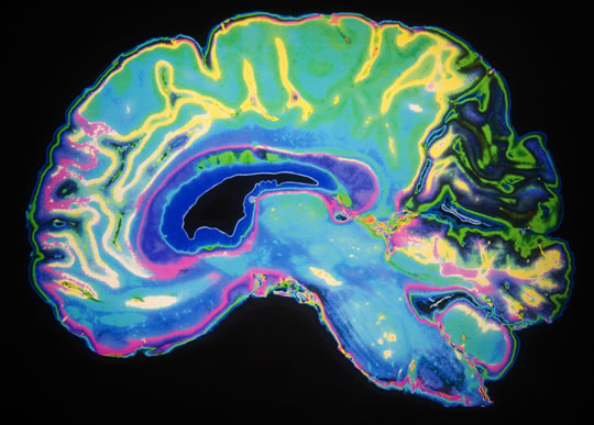 Neuroscientists Improve Cognition in Brains Riddled With Alzheimer's Toxins post image