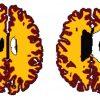 Obesity brain