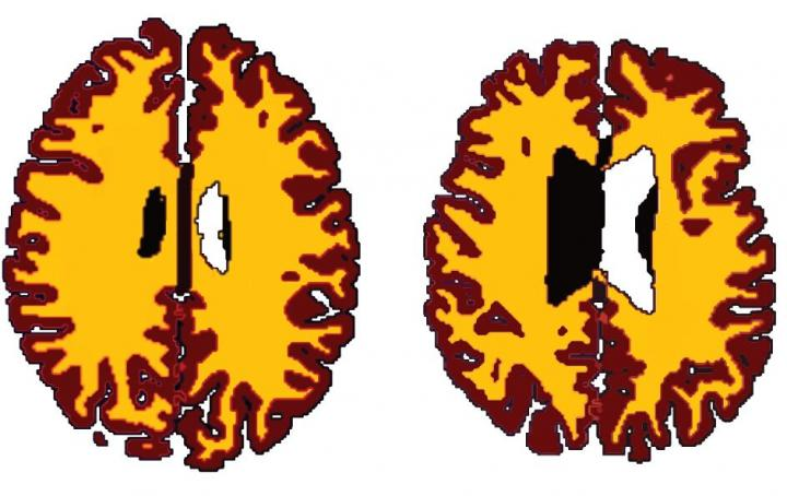 The Best Way To Keep Your Brain 10 Years Younger post image