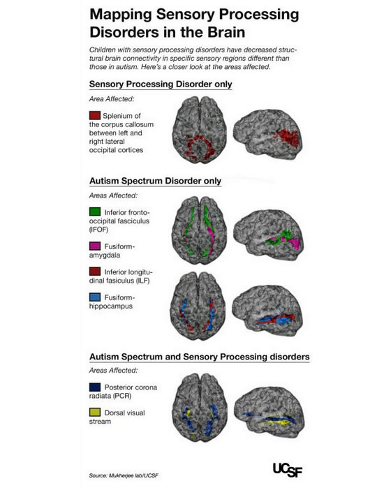 brain wiring differences in sensory processing disorders