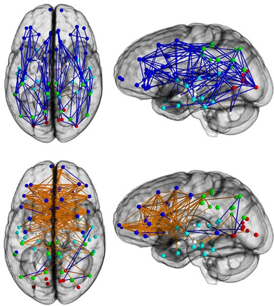 Post image for Connectivity: The Difference Between Men's and Women's Brains