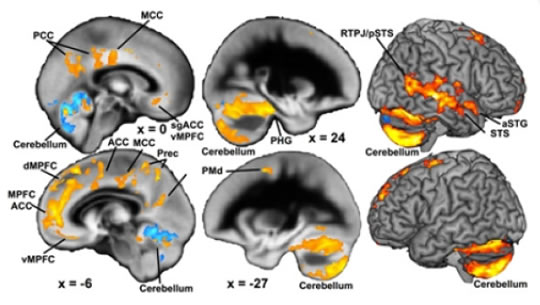 Post image for Family Problems In Childhood Affect Brain Development