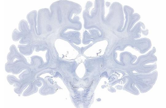molaison_brain