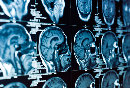 Schizophrenia, Depression and Addiction All Linked to Similar Loss of Brain Matter - PsyBlog