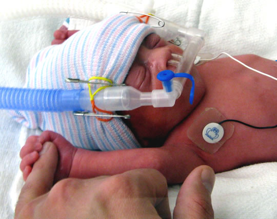Post image for Loving Touch is Critical for Premature Infants