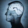Thumbnail image for Dementia: 9 Warning Signs Everyone Should Know