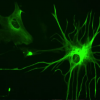 Thumbnail image for Discovered: How The Brain Repairs Itself After a Stroke