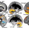 Thumbnail image for Family Problems In Childhood Affect Brain Development