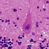 Thumbnail image for Copper Pinpointed as Main Environmental Cause of Alzheimer's Disease