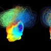 Thumbnail image for Consciousness in Vegetative Patients Thought Beyond Hope Revealed by Active Brain Networks