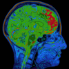 Thumbnail image for Alzheimer's Protein Appears At This Incredibly Young Age