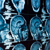 Thumbnail image for Schizophrenia, Depression and Addiction All Linked to Similar Loss of Brain Matter