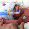 Thumbnail image for Loving Touch is Critical for Premature Infants